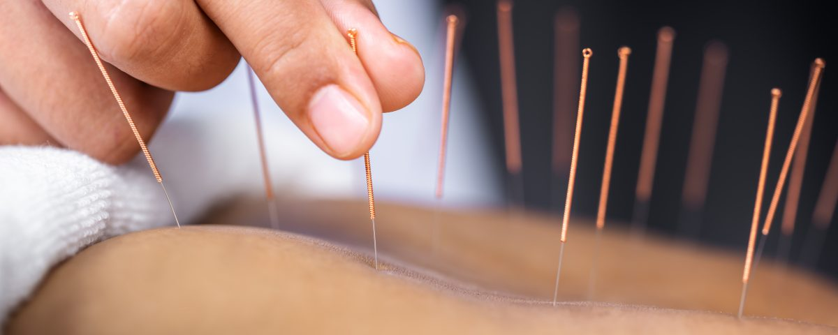 What conditions Can Be Treated With Acupuncture?