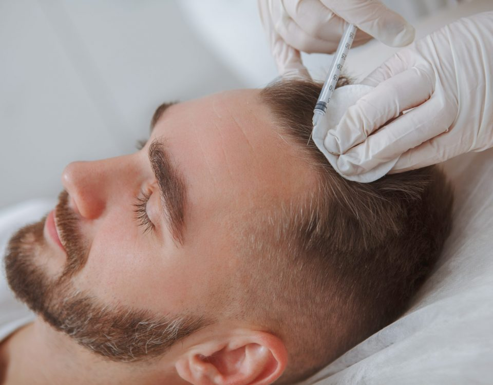 PRP for Hair Loss: Does It Work, and Is It Safe?